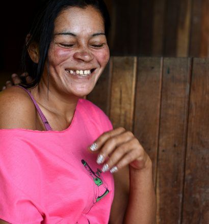 Rosemary, a person affected by leprosy, from Brazil with numb spots on her body due to leprosy complications