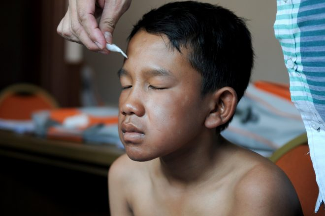 A young boy, affected by leprosy, with senseless spots on his face due to leprosy complications