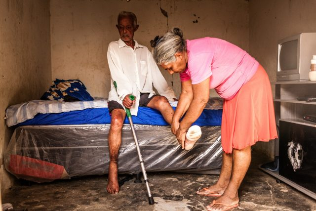 A person affected by leprosy from Brazil with numb feet due to leprosy complications gets new bandages from his wife