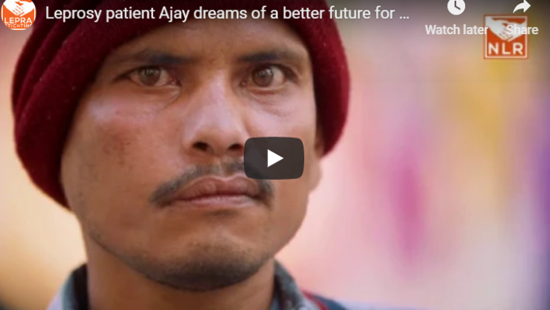 Video still: click to hear the story of Ajay, a person affected by leprosy