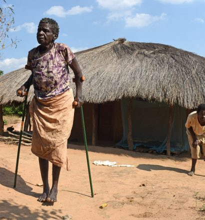 Crutches for woman affected by leprosy