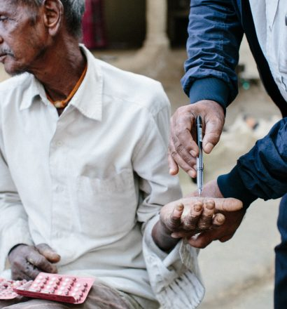 Rameswor, a person affected by leprosy, has numb hands due to leprosy complications