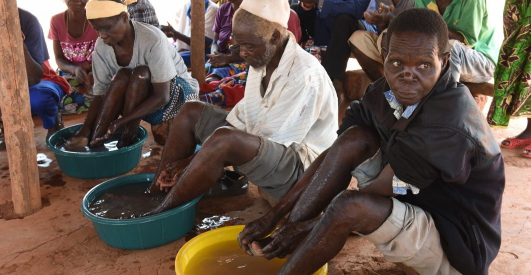 Persons affected by leprosy take care of their feet to prevent infections