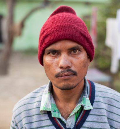 Meet Ajay, a person affected by leprosy