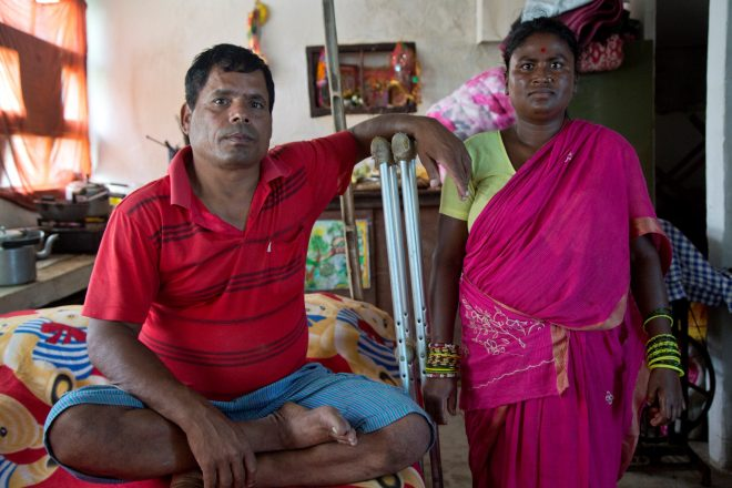 Nepalese man with leprosy walks on crutches