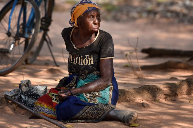 Woman affected by leprosy in Mozambique