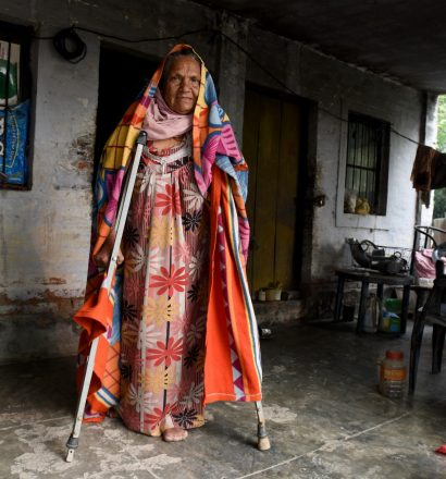 A person affected by leprosy provided with assistive devices for walking